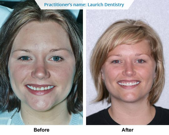Dental service Before After