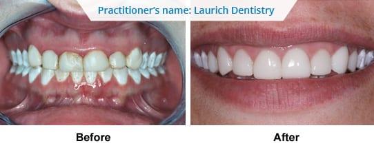 Dental service Before After