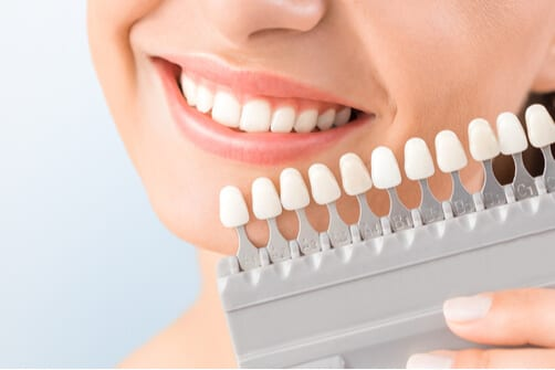 Smiling woman holding veneers