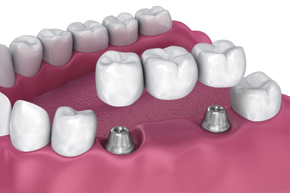 Implant-supported dental bridge