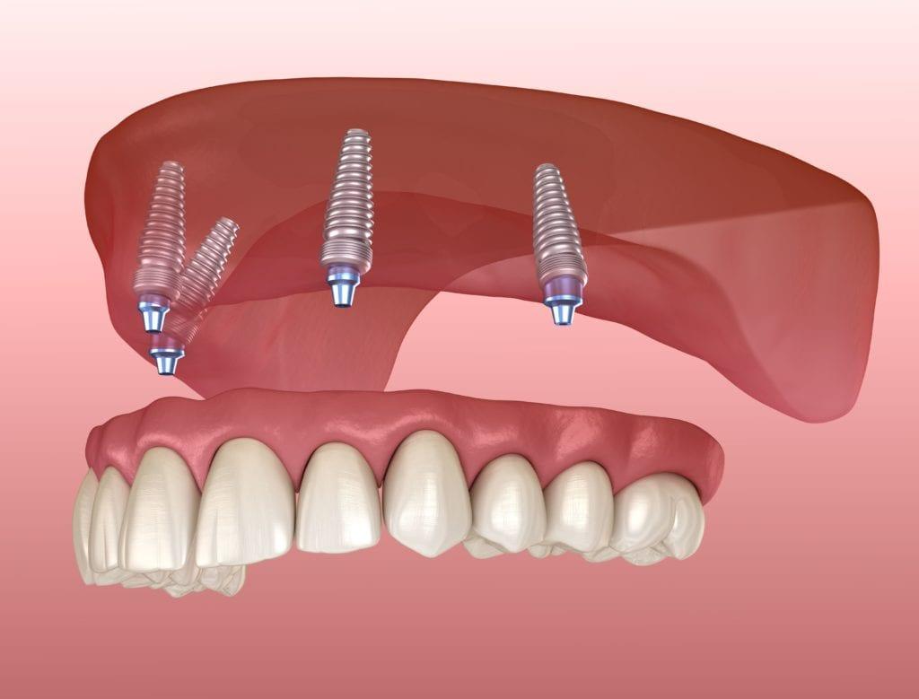 Полный съемный зубной протез