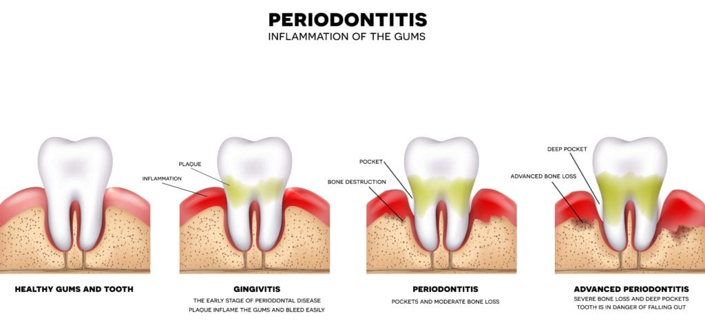 Diagram showing the stages of gum disease