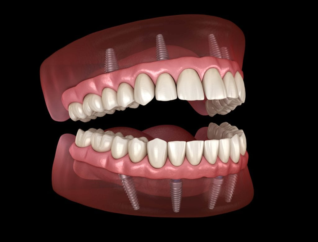 Teeth Model showing inside gums with implants
