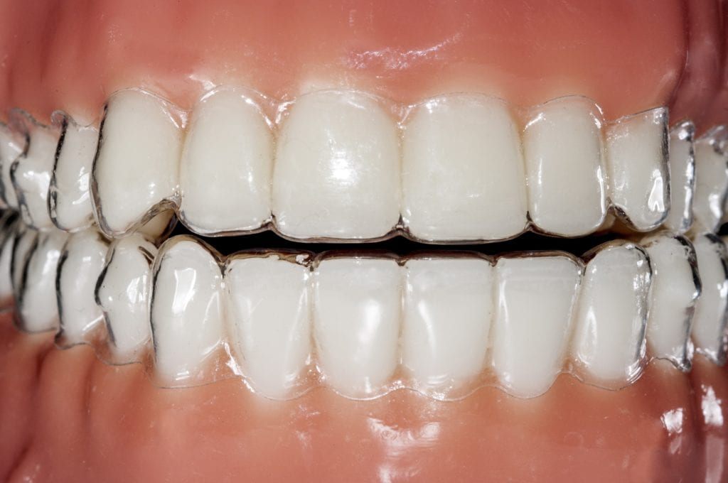 Clear aligners shown on teeth