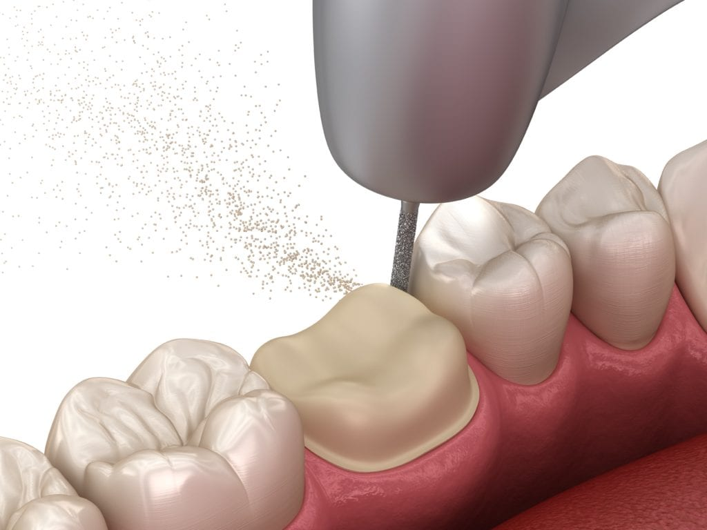 Tooth being reduced for dental crown placement