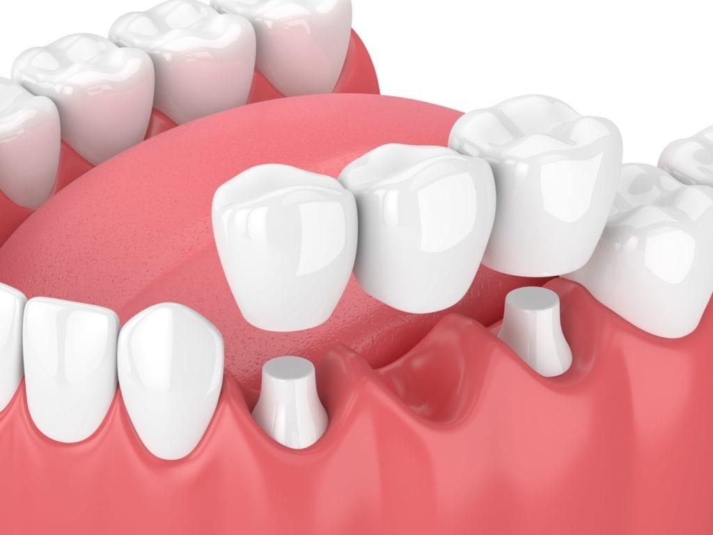 Dental Implants with Bridge Graphic