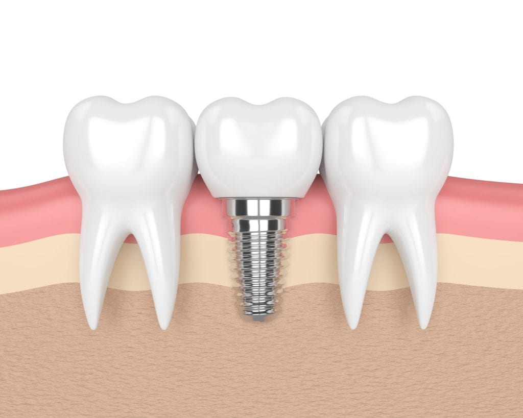 Graphic showing dental implant structure