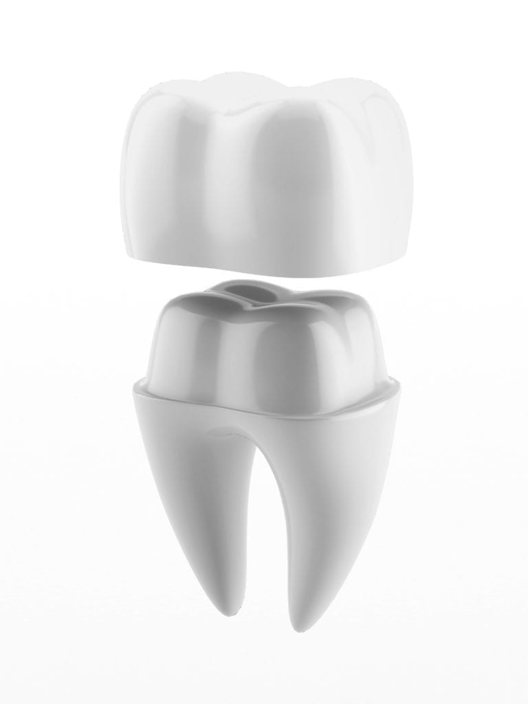 Dental cap being placed on tooth