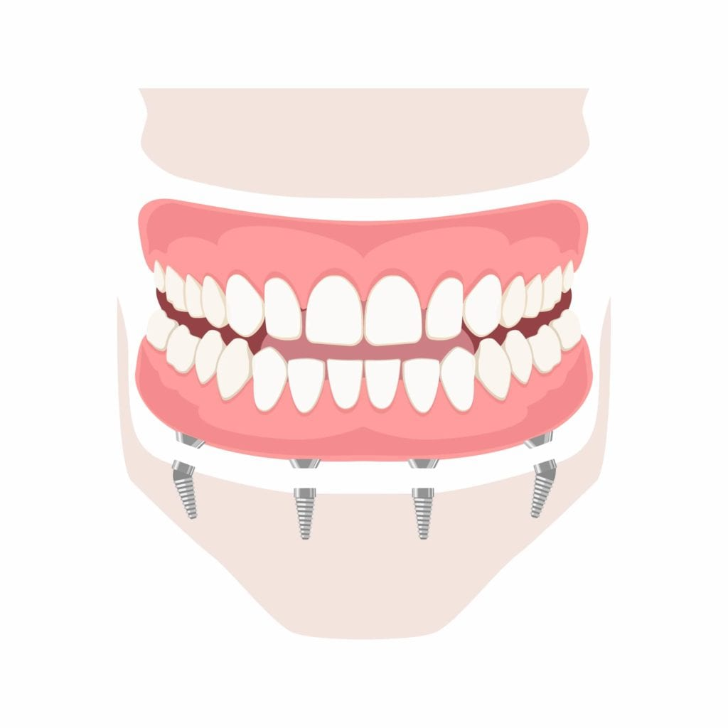 Removable denture of the upper and lower jaw on four implants.
