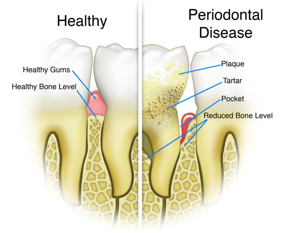 Stages of Gum Disease