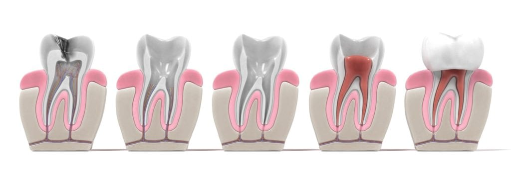 Root Canal Treatment Step by Step Graphic