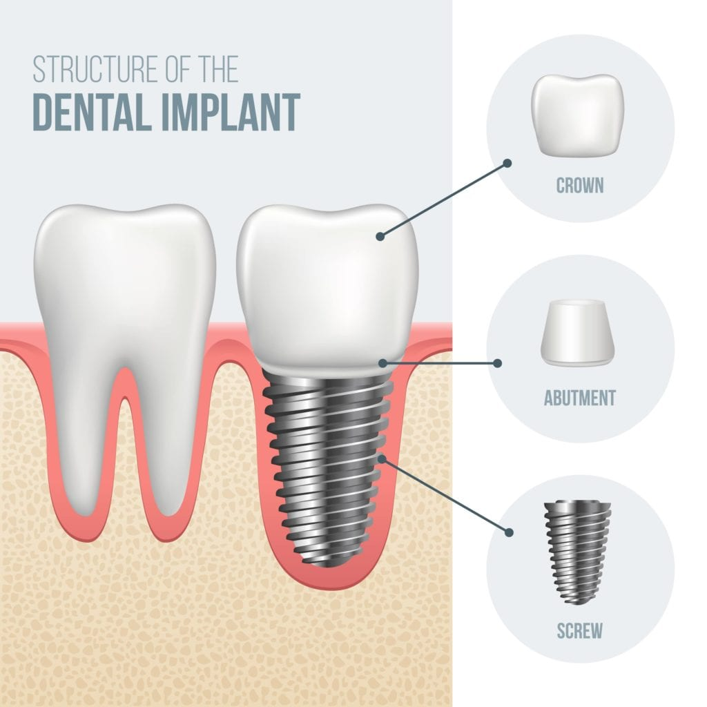 Dental Implant Structure; showing three parts