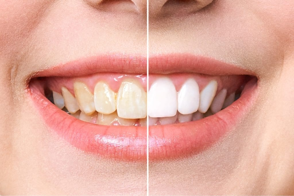 Left vs Right Side Mouth after Whitening