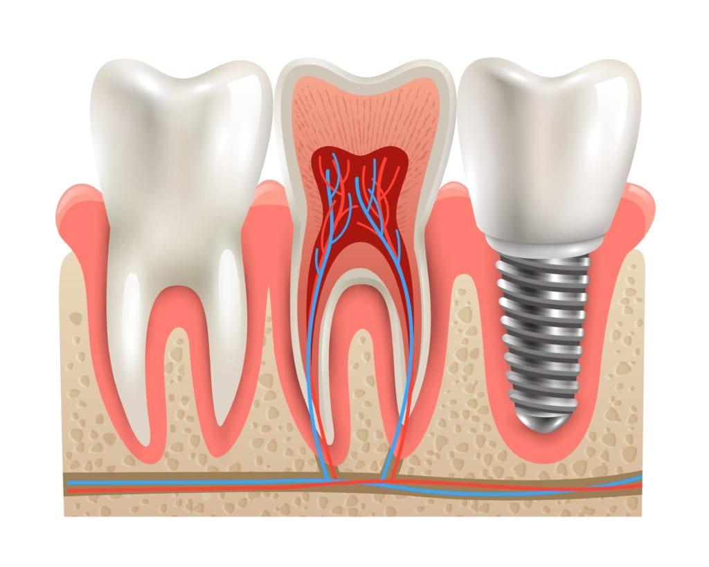 dental implant in bone