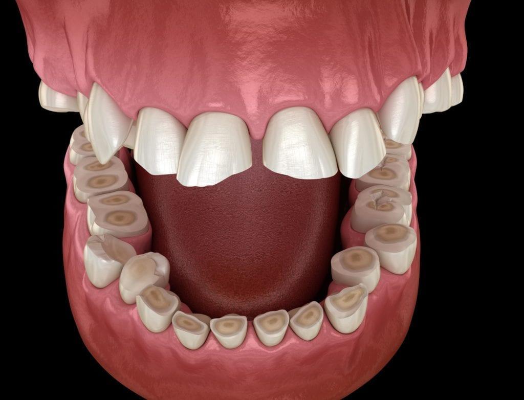 Teeth worn down from bruxism